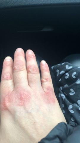 mano con psoriasi - dopo 5 giorni di cura