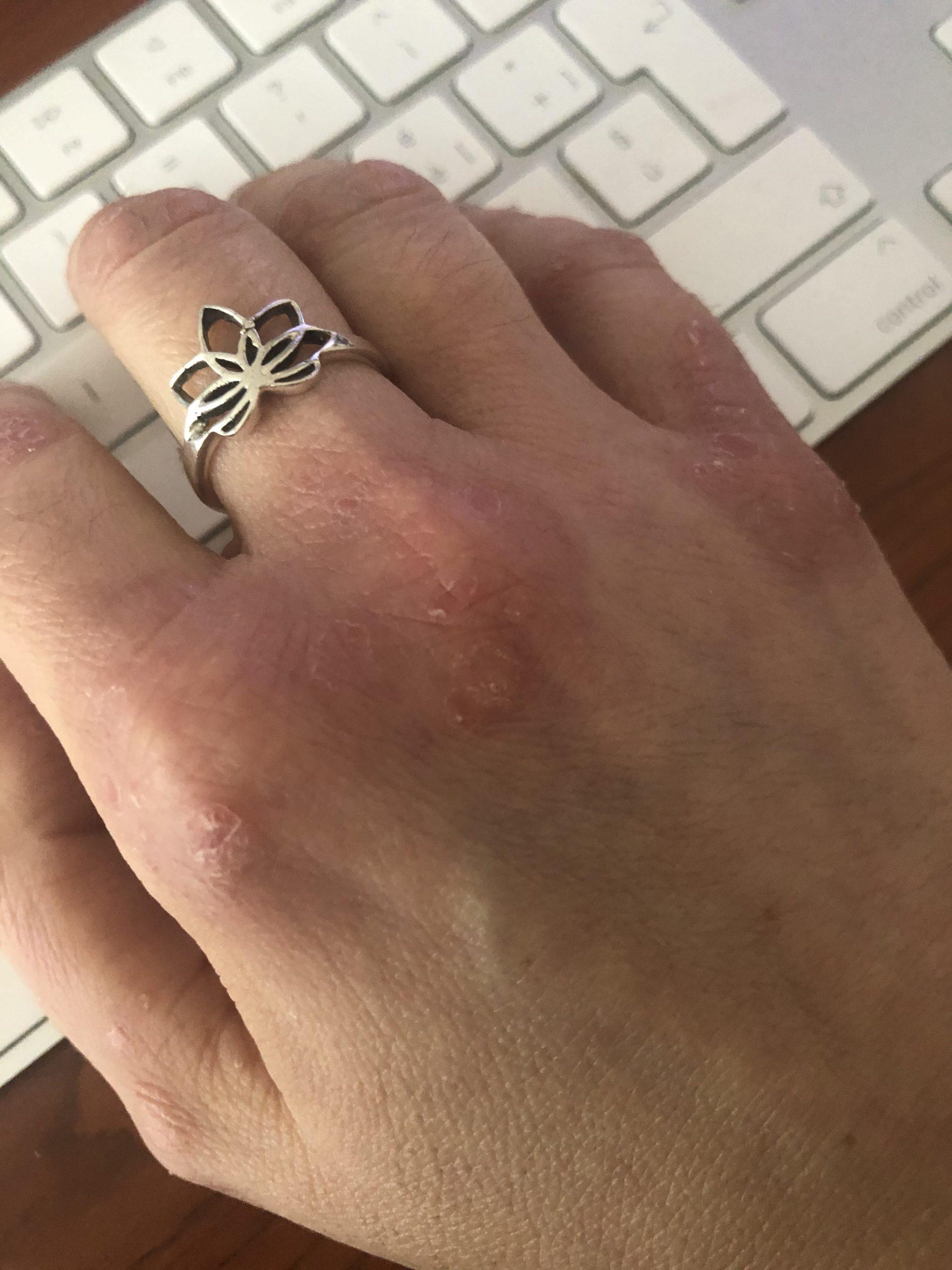 mano con psoriasi - dopo 10 giorni di cura